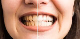 Maloclusión Dental: causas y cuidado de los arcos no alineados
