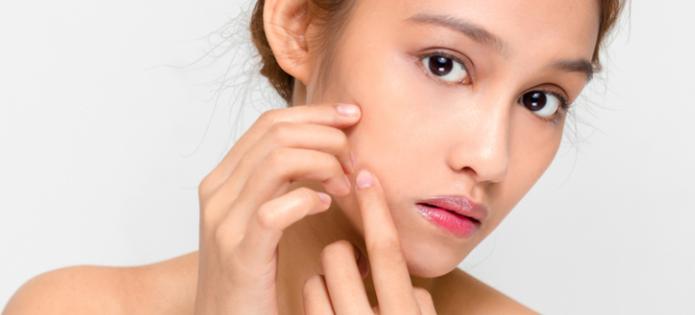 ¿El acné requiere tratamiento?